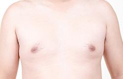 Chirurgie de la gynécomastie